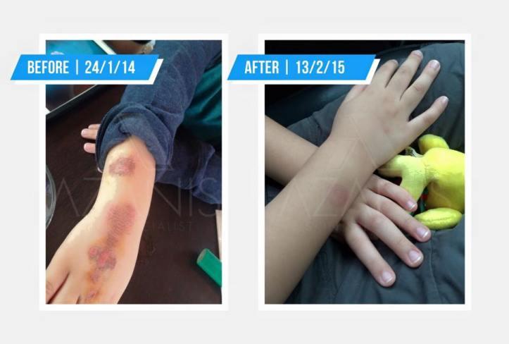 azanis-scar-serum-testimoni-1