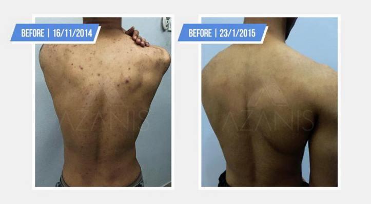 azanis-scar-serum-testimoni-6