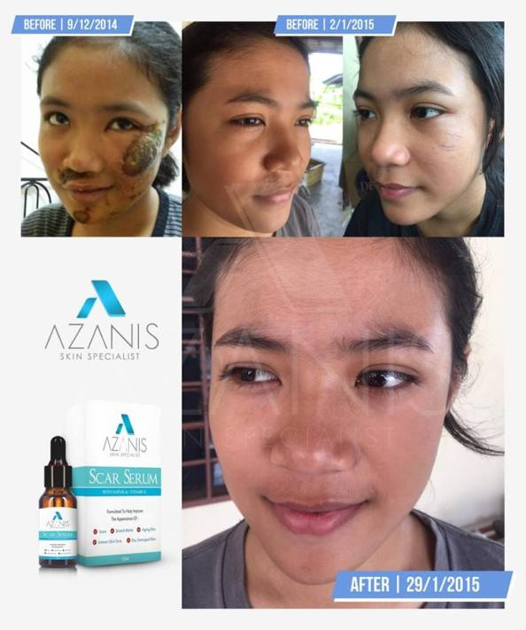 azanis-scar-serum-testimoni-7